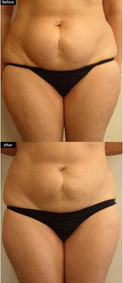 Tummy Before and After