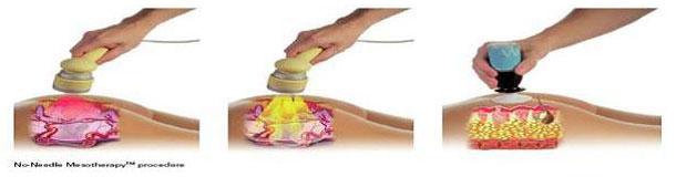 no-needle-mesotherapy-procedure