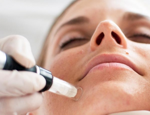 Micro Needling Information