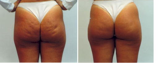 Celulite butox before and after