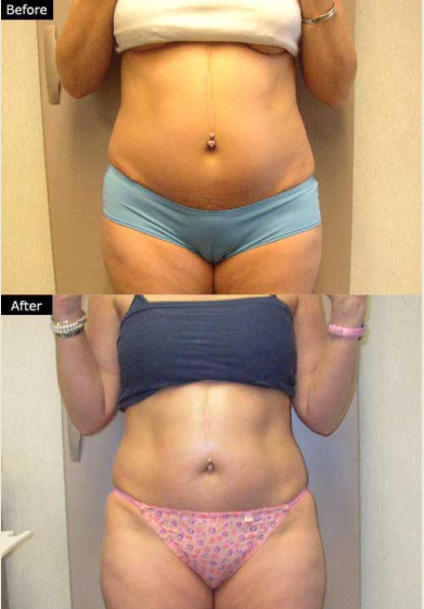 Lower Abdomen Before and After