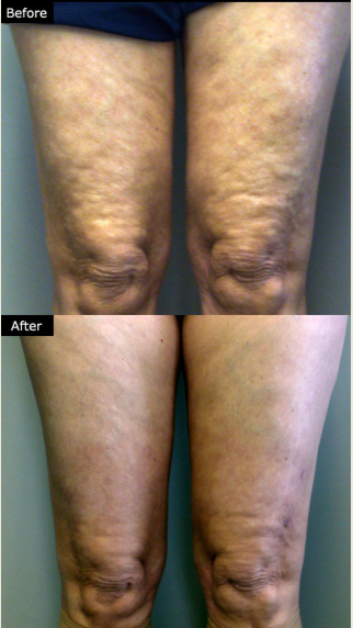 Lipolysis Mesotherapy Treatments