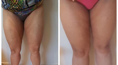 Results Cavitation Treatments