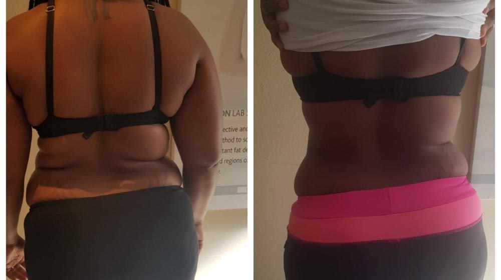 Fat Reduction Without Surgery