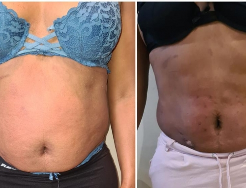 Fat Freeze and Lipolysis Before and After